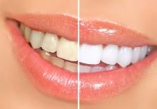 Белоснежная улыбка за 30 минут