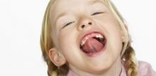 Пластика уздечки губы